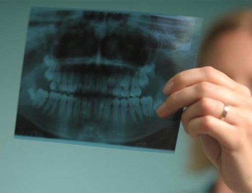 فیلم رادیوگرافی در دندان پزشکی