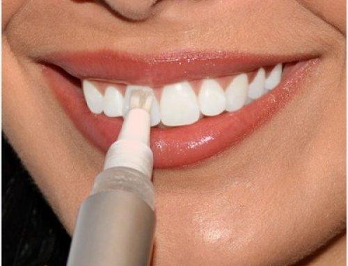 لاک دندان چیست؟